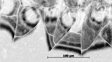 Hyaluronic Acid, the matrix molecule displays hydrated fiber mesh